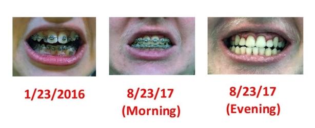 alex tooth progression